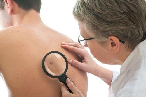 cause degli inestetismi della pelle