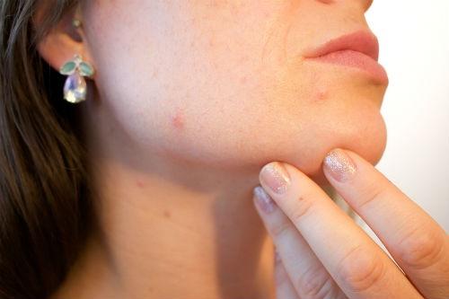 olio di enotera per l acne
