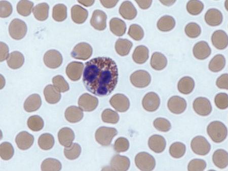 Funzioni degli eosinofili