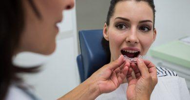 L'ortodonzia invisibile migliora il bruxismo?